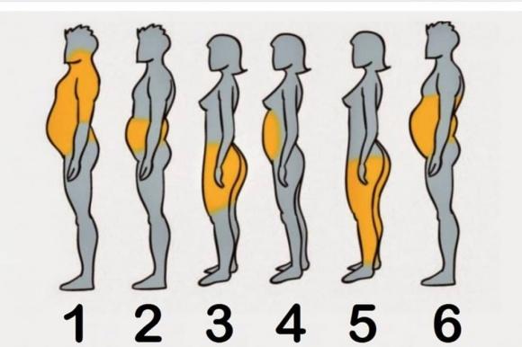 Remodelarea corporală – un mare ajutor în lupta cu kilogramele nedorite